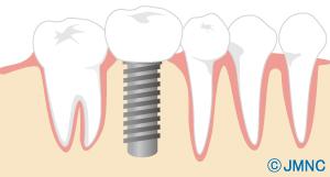 人工の歯を製作・装着